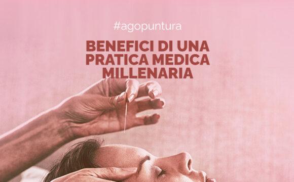 Agopuntura: i benefici di una pratica medica millenaria